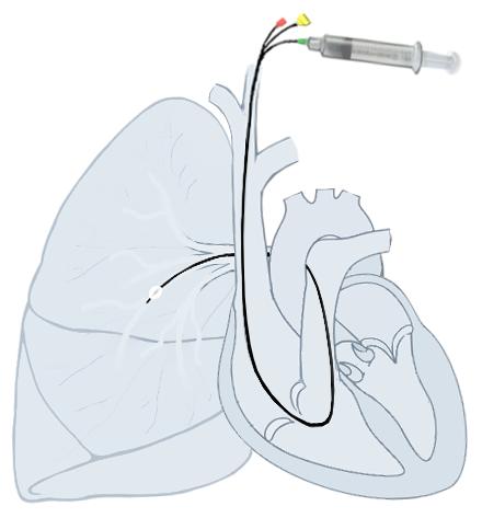 Pulmonary_artery_Catheter