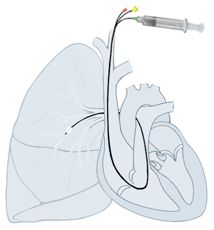 Pulmonary_artery_Catheter
