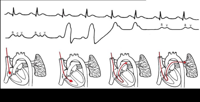 Swan-Ganz_catheter.png