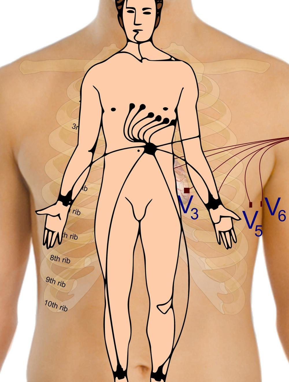 electrocardiogram-165962_1920