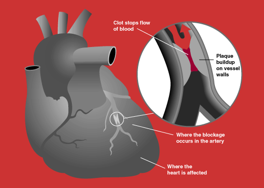 Heart_attack_diagram