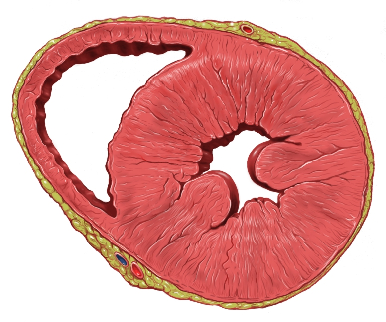 Heart_left_ventricular_hypertrophy_sa.jpg